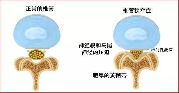 症 脊椎 管 狭窄